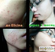 Elicina – крем від рубців, шрамів, акне, розтяжок шкіри