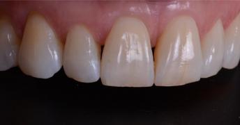 Лікування , протезування та імплантація зубів у Полтаві на выгодн